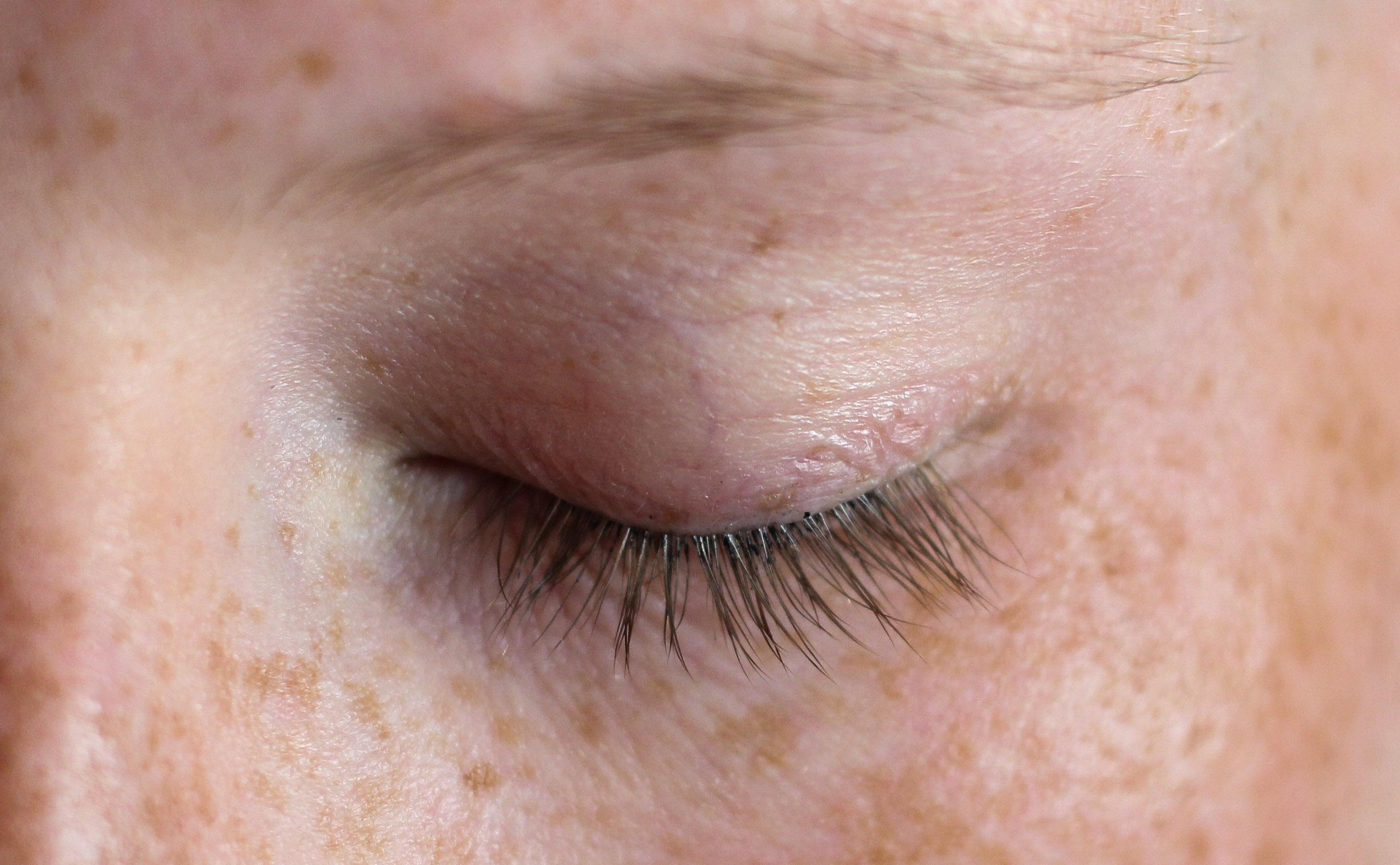 Augenpartie Lange Wimpern RELASH Wimpernserum Orphica Beauty Blog Test Anwendung Vorher 2